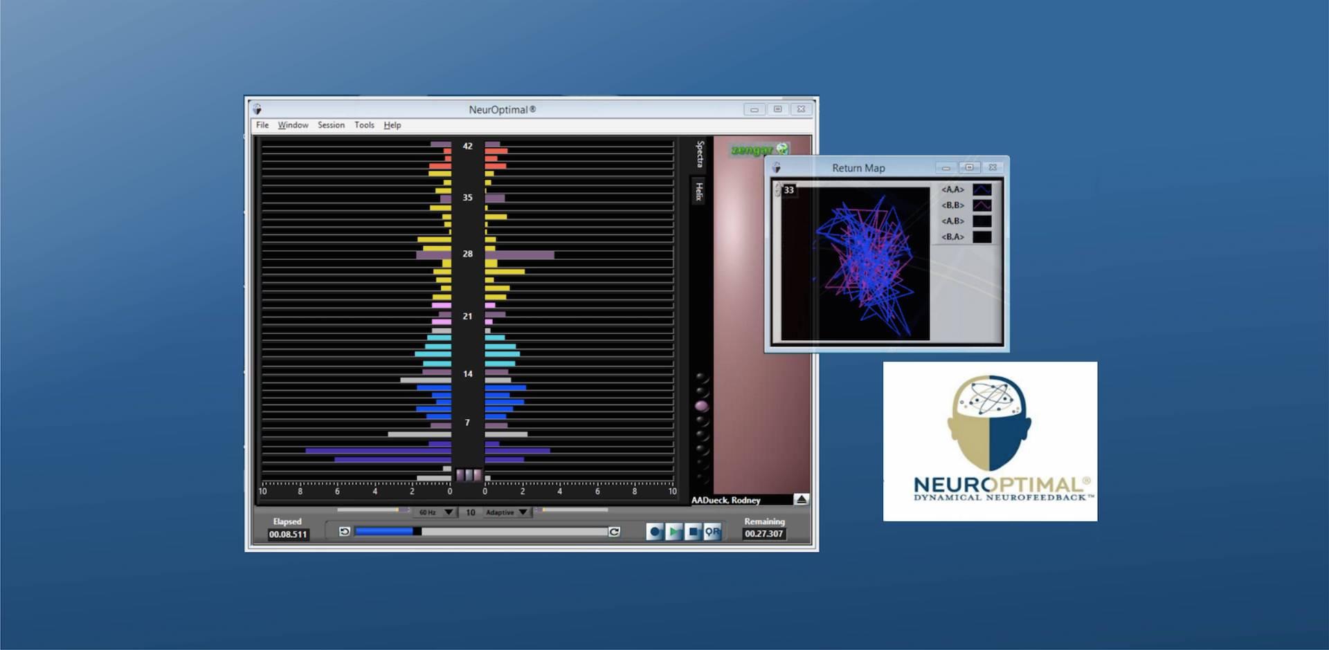 Que ofrezco - Neurofeedback (imagen cabecera)